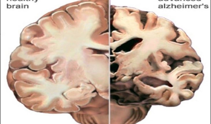 Blood Test Detects Rate of Brain Cell Death from Alzheimer ...