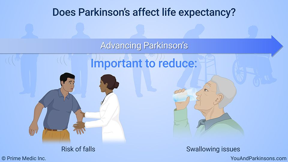 Does Parkinsonâs affect life expectancy? After learning ...